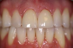 chris-roen-finish-89-veneers