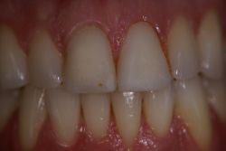 chris-roen-temp-veneers